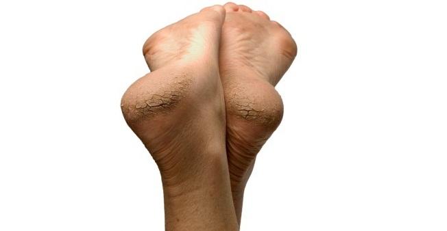 eliminar-sequedad-y-grietas-en-los-talones